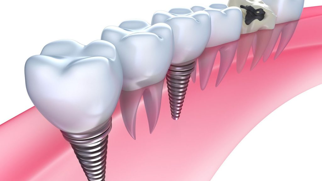 Dental Implants Carmichael