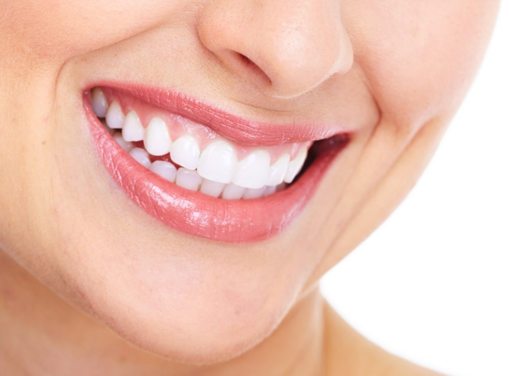 porcelain veneers overview